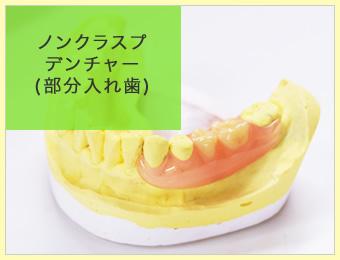 ノンクラスプデンチャー(部分入れ歯)