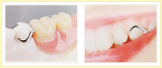 自然に見える入れ歯について01