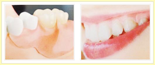 自然に見える入れ歯について02