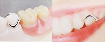 保険適用部の分入れ歯