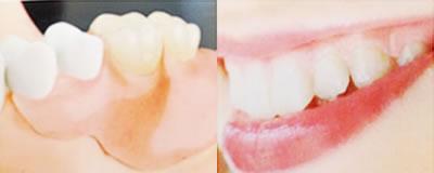 自費負担の部分入れ歯