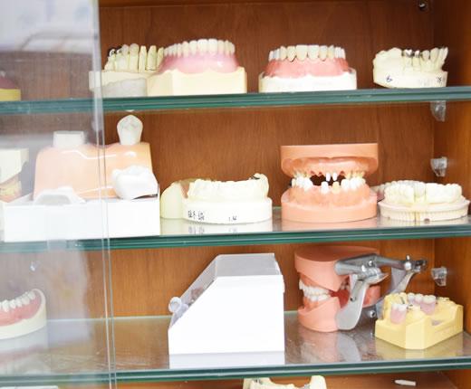 義歯(入れ歯)サンプル
